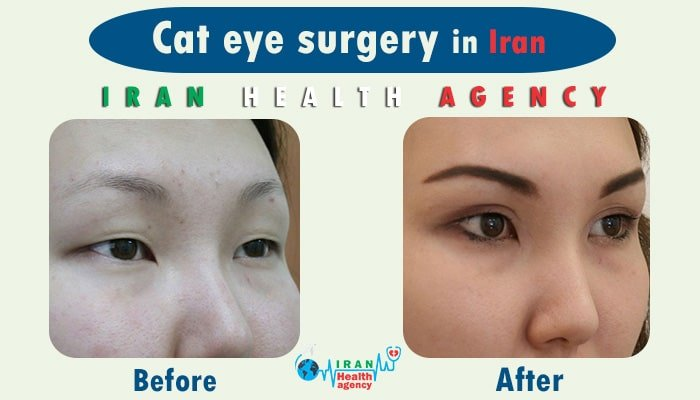 Cantoplasty in iran
