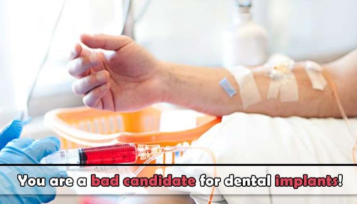 Chemotherapy and radiotherapy dental implants