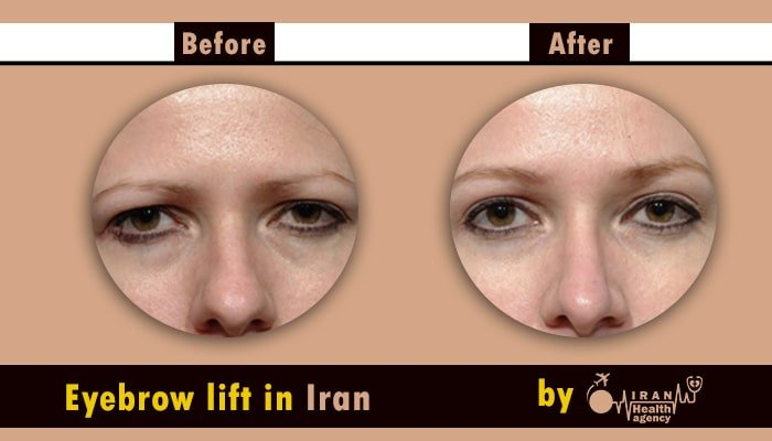 Eyebrow lift Iran before after