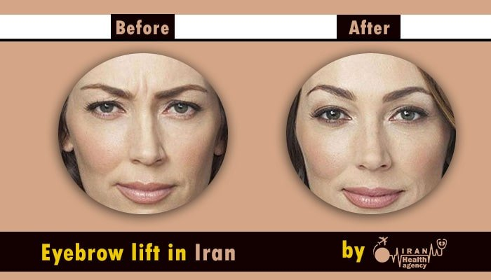 Eyebrow lift in Iran before after