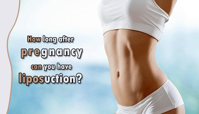 How long after pregnancy can you have liposuction