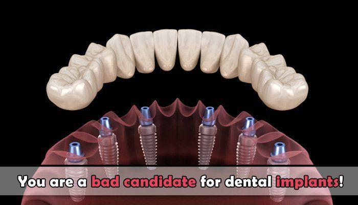 bad candidate for dental implants