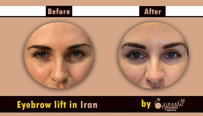brow lift in iran before after