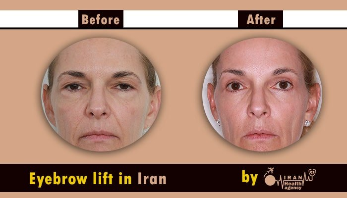 brow lift iran before and after