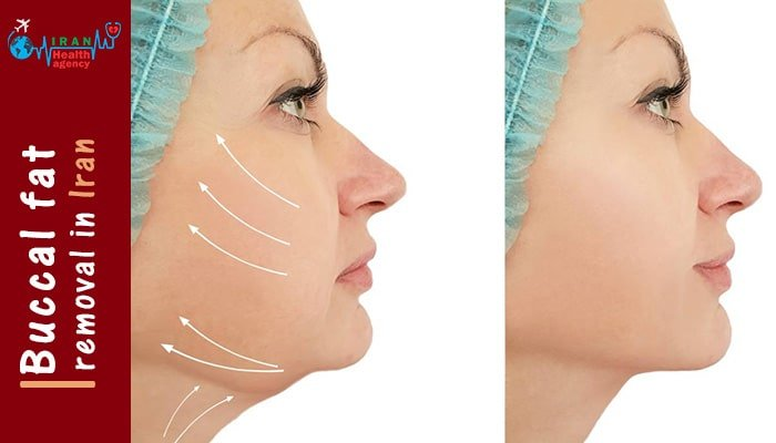 buccal fat removal Iran