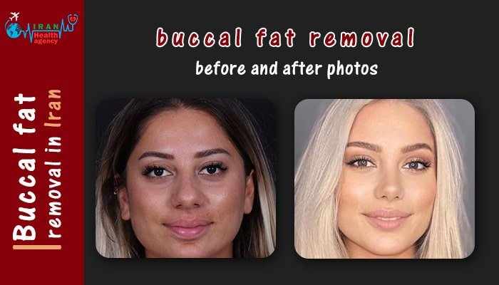 buccal fat removal before after