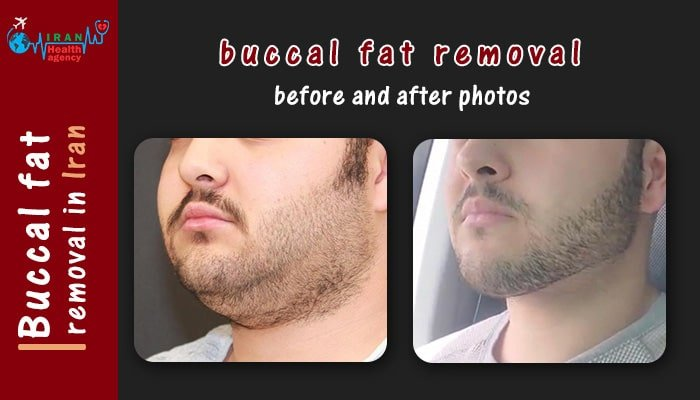 buccal fat removal in iran before and after