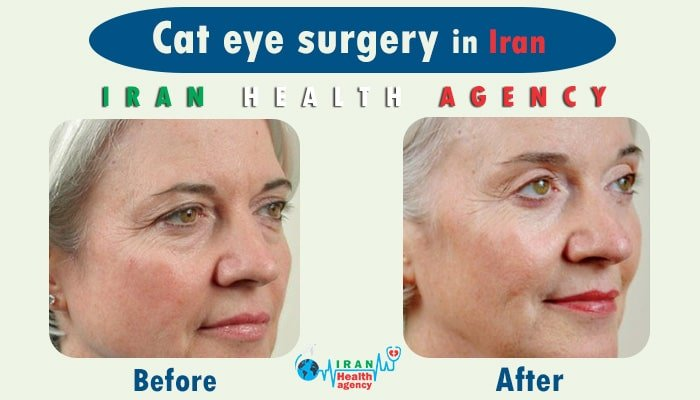 cat eye surgery in Iran before after