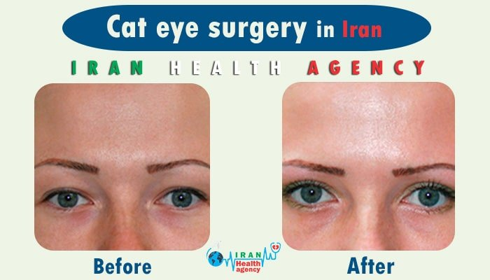 cat eye surgery in Iran before and after