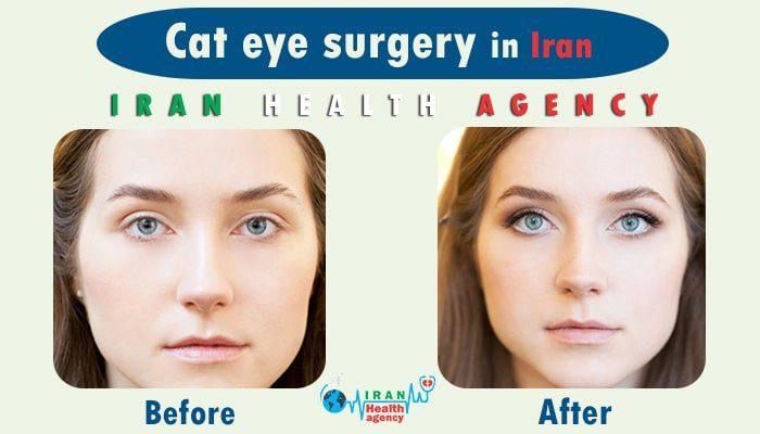 cat eye surgery in Iran