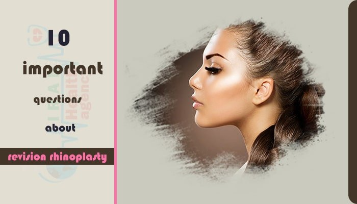 When can you do revision rhinoplasty