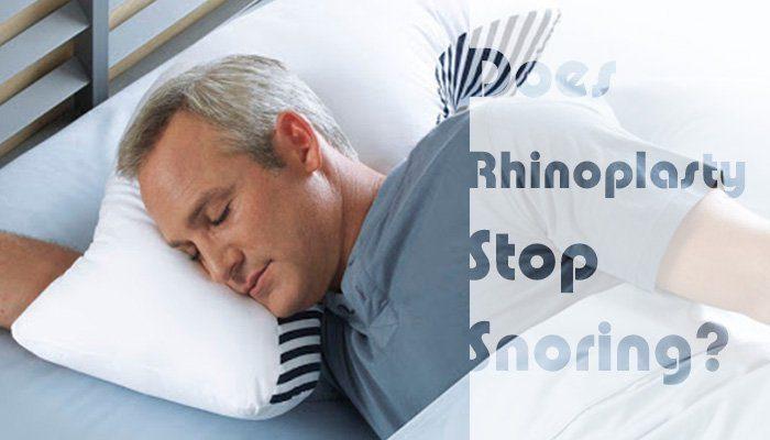 rhinoplasty to stop snoring