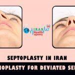 septoplasty in Iran