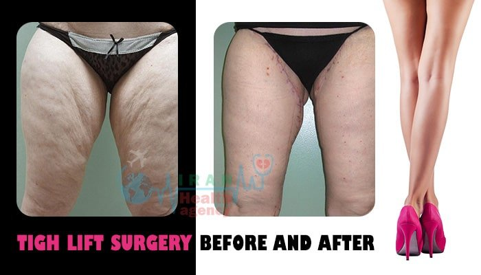 thigh lift surgery before and after