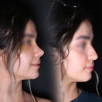 nose job Iran before after