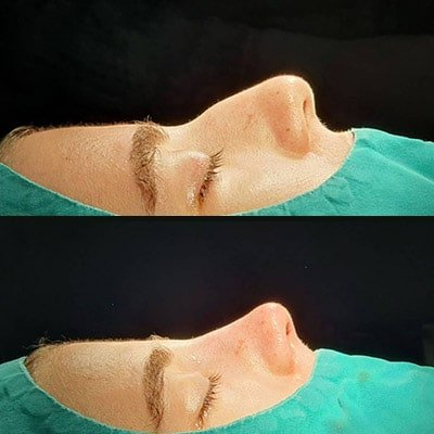 nose job in Iran before after