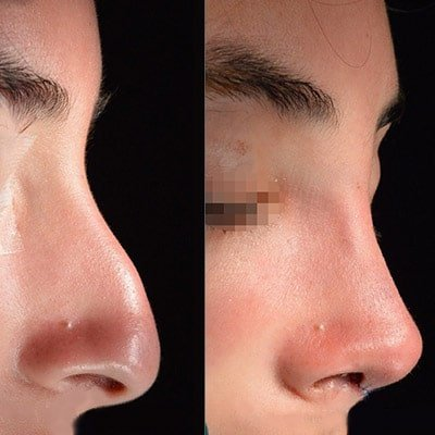 rhinoplasty Iran before after